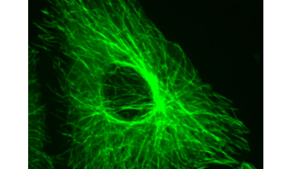 image super resolution and applications